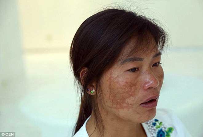 被丈夫和其情人划伤的中国母亲